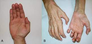 La Malattia di Charcot-Marie-Tooth (CMT) una neuropatia periferica